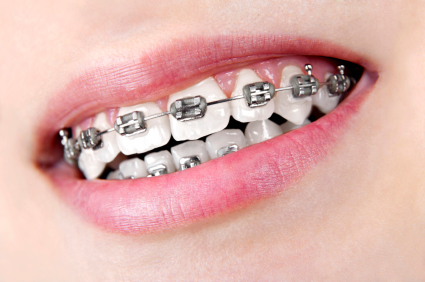 different types of braces for adults dentists