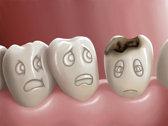 Signs of Cavities