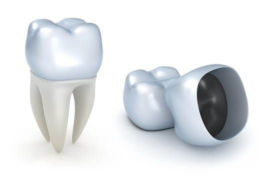 Difference Between Dental Caps and Crowns - Dentists