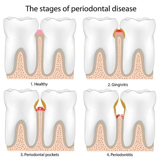 How to Treat Periodontal Disease