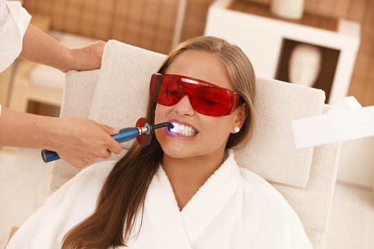 The Cost of Laser Teeth Whitening