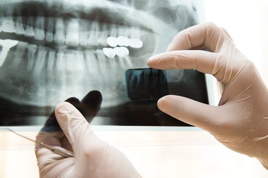What Is Dental Bone Loss Regeneration? - Dentists