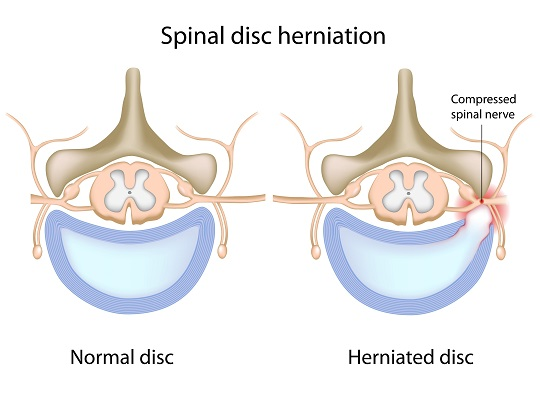 How to Treat Herniated Disc - Chiropractors