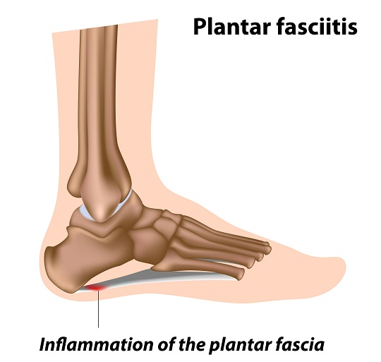 Symptoms of Plantar Fasciitis